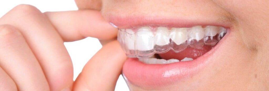 Fixarea unui aparat dentar Invisalign pentru corectarea danturii