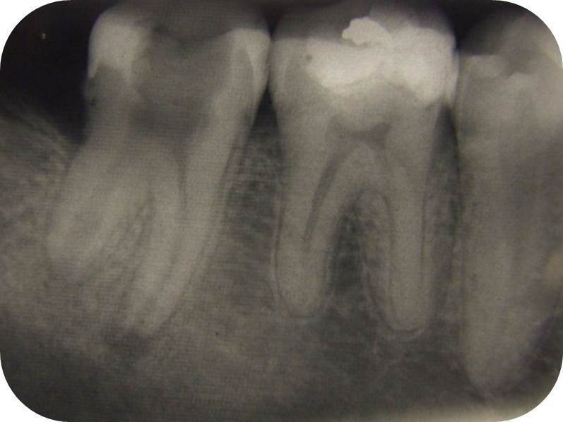 chirurgie endodontic