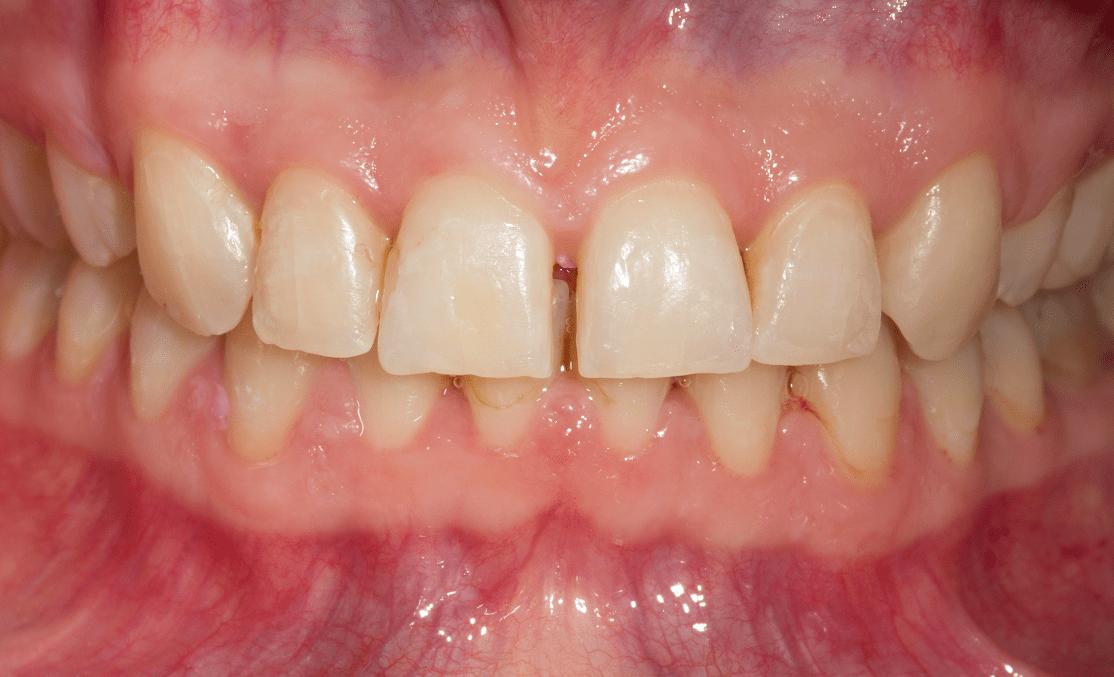 fatete dentare before