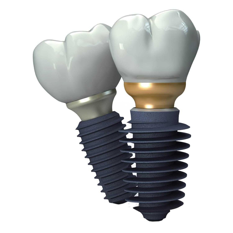 Implant dentar Megagen - Clinica Trident