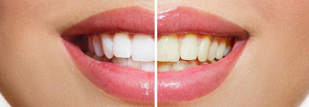 metode albire dinti