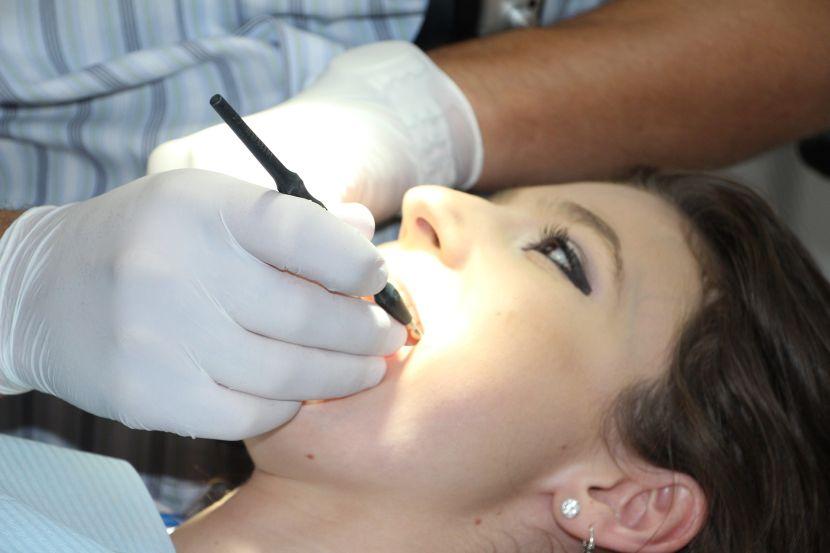obturatia dentara - plomba dentara