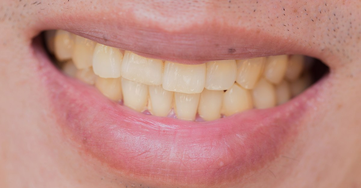 Viziune cu durere de dinți în Dureri de dinti - Tratamente (remedii) Naturiste   british-pub.ro