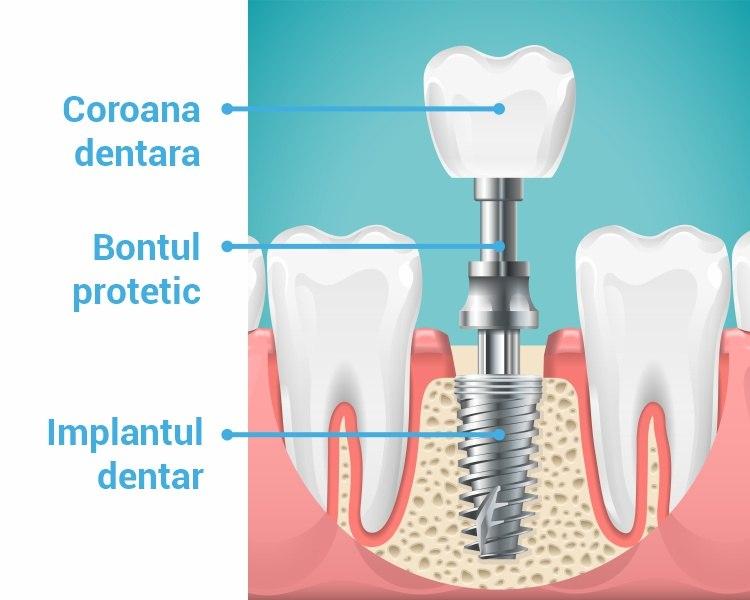 componentele implantului dentar trident